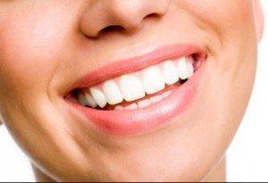 sonrisa 300x205 - Clínica Dental Acedo Martín