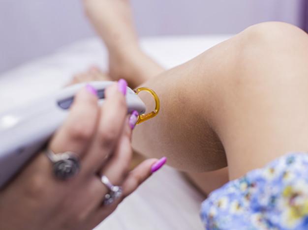 doctora haciendo depilacion laser piel piernas mujer 114579 4312 - La Depilación Láser ¿En qué consiste?