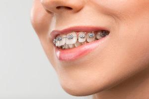 1047 300x200 - Tipos de ortodoncia ¿Cuál es el mejor?